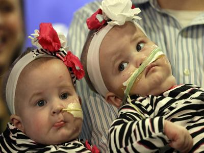 Once-conjoined twins make public debut