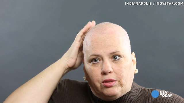 Dealing With Hair Loss as a Woman picture