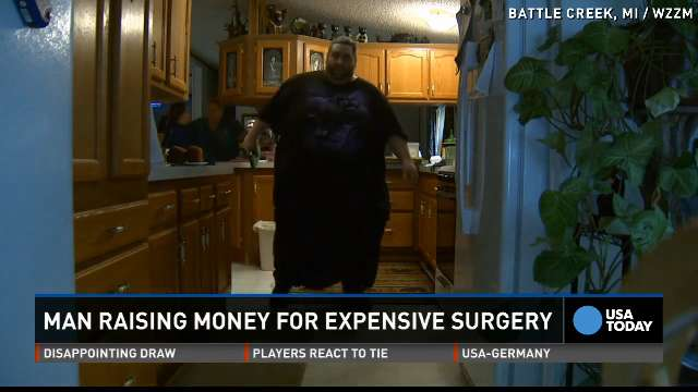 Man with 100lb scrotum was told to lose weight