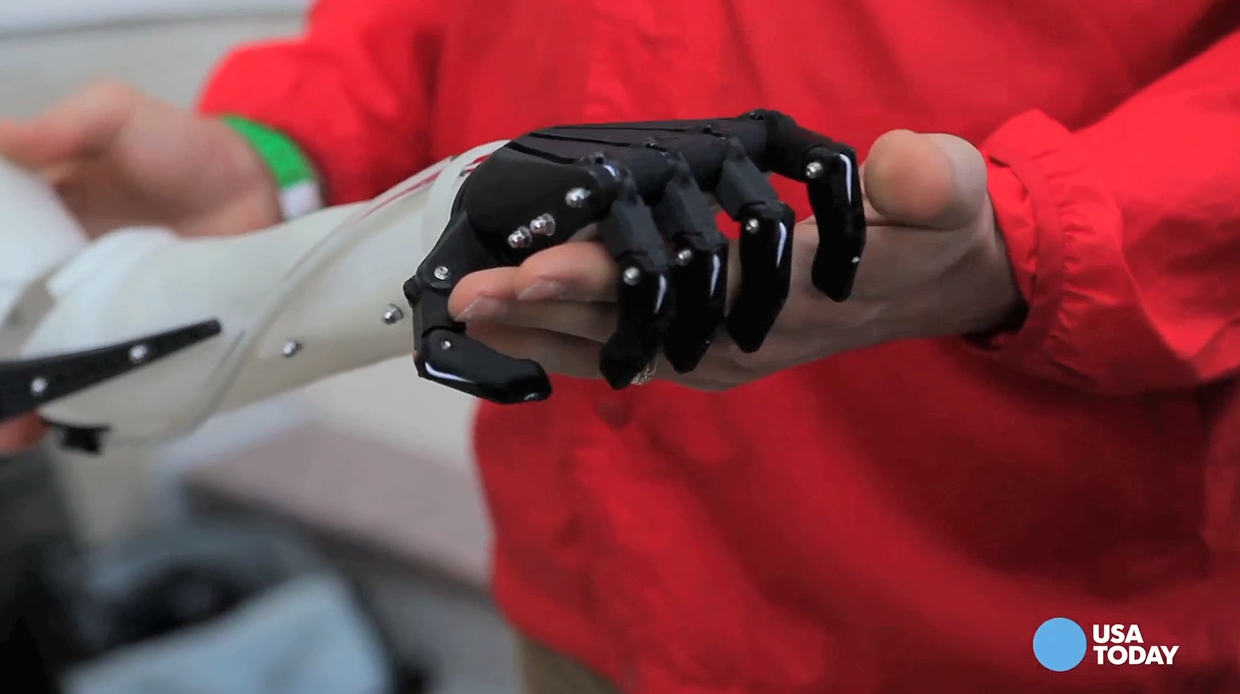 'Not Impossible' uses 3D printers to make prosthetic arms