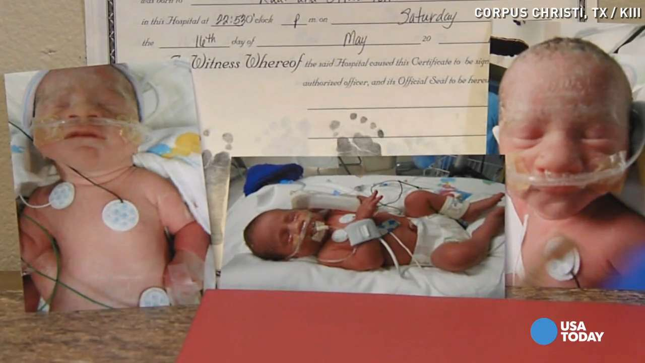 Mom gives birth to triplets, two conjoined