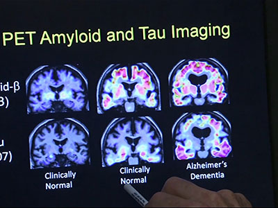 New research may help prevent Alzheimer's