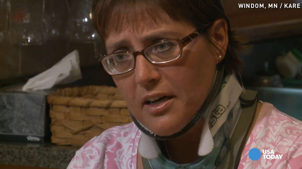 Encounter with whale broke this woman's neck