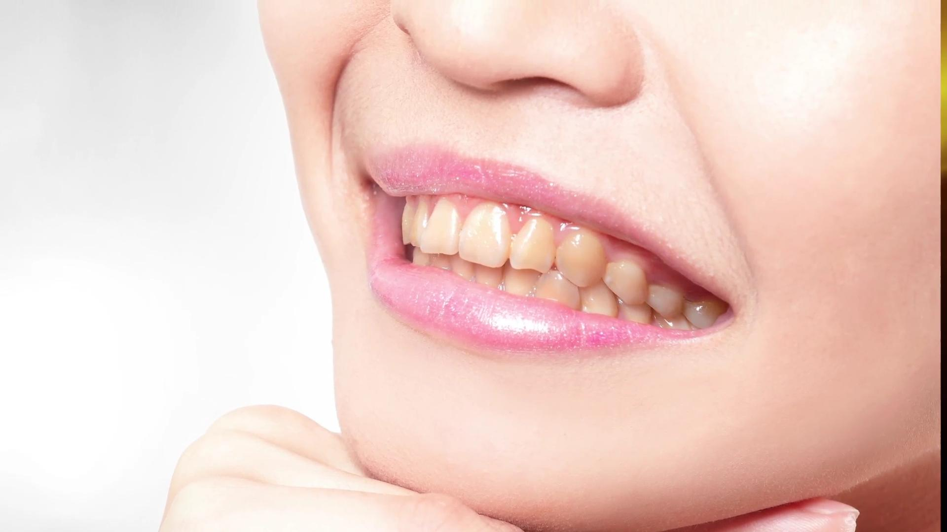 5 things you never knew could damage your smile