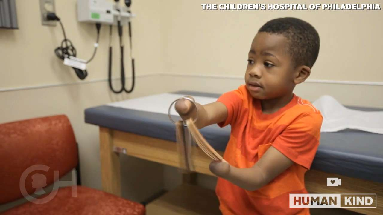 Little boy asked for prosthetics, ended up getting hands