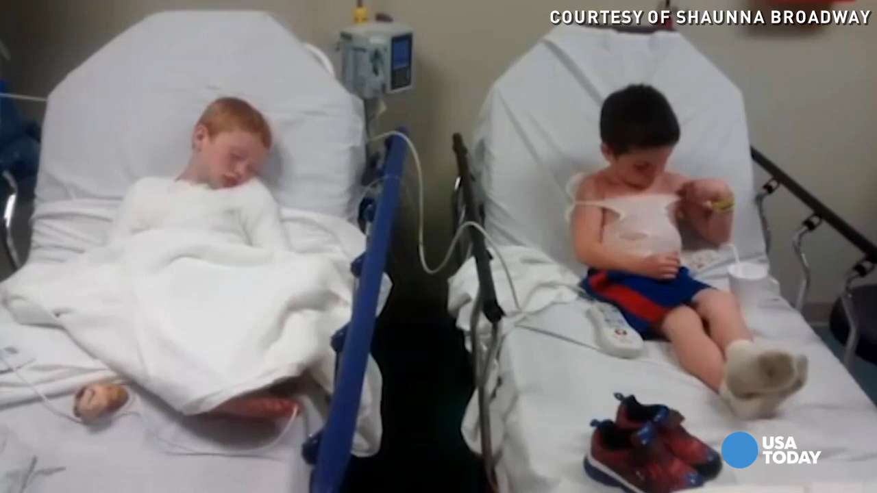 Two kids severely burned during daycare trip