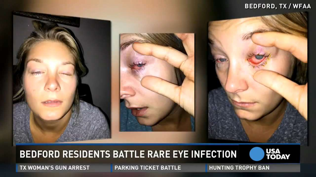 Rare eye parasite causes sharp pain in those infected