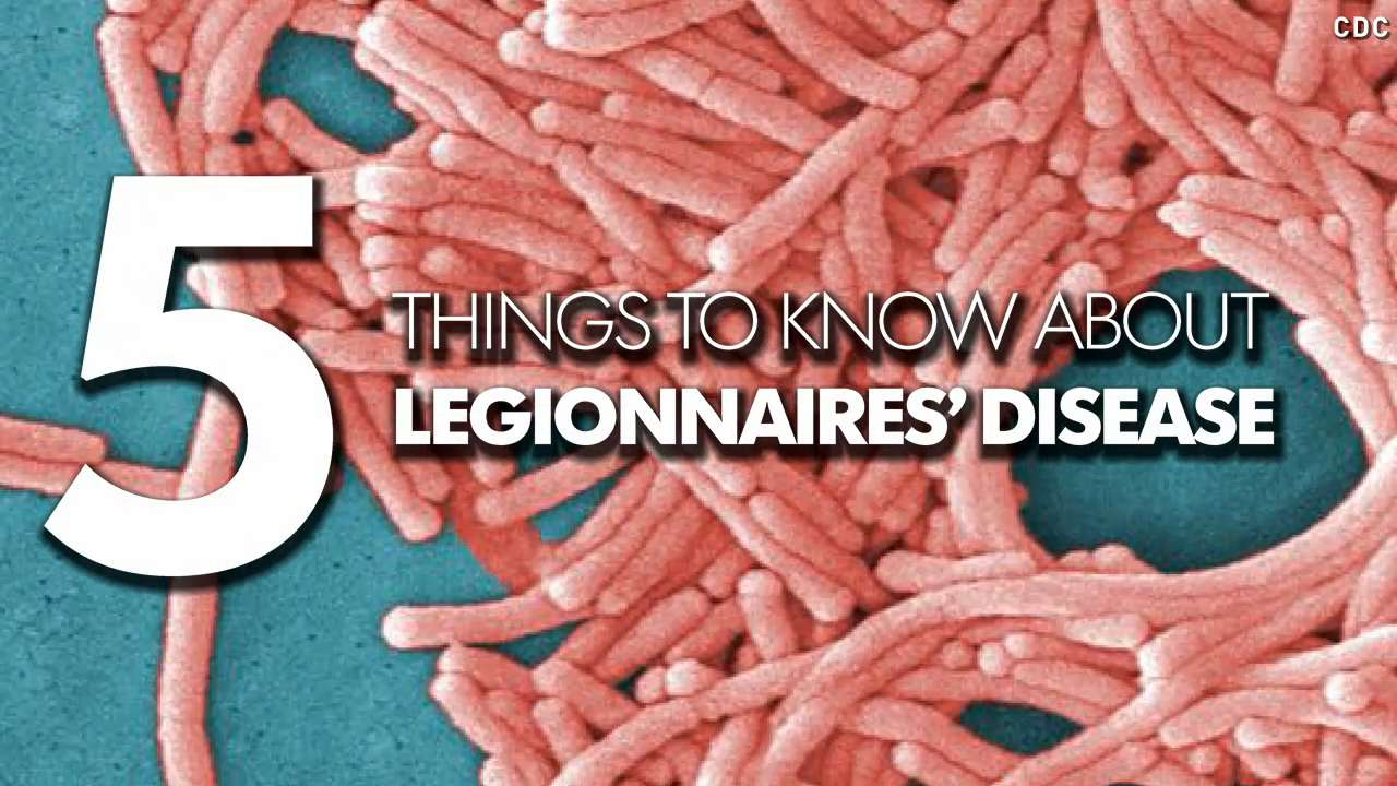 Legionnaires' disease: 5 things you need to know
