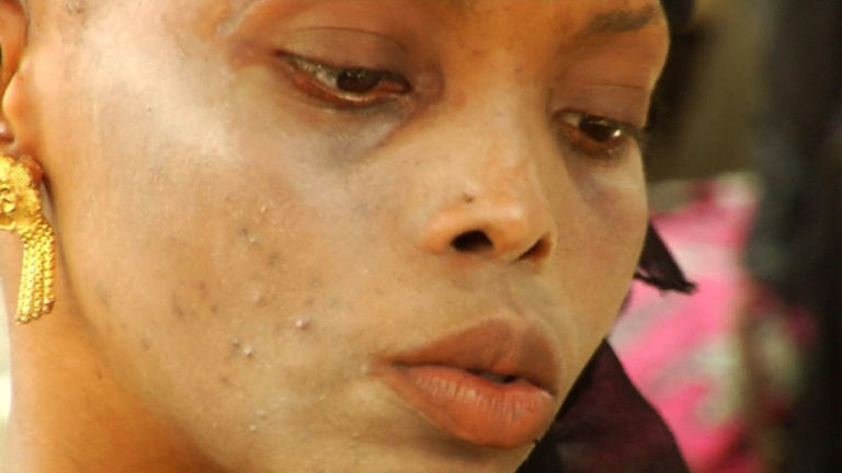 Last April, Ivory Coast banned whitening creams because of the negative health effects associated with them, from white spots and acne to cancer. Video provided by AFP