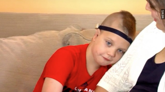 Rare surgery gives 8-year-old new ears