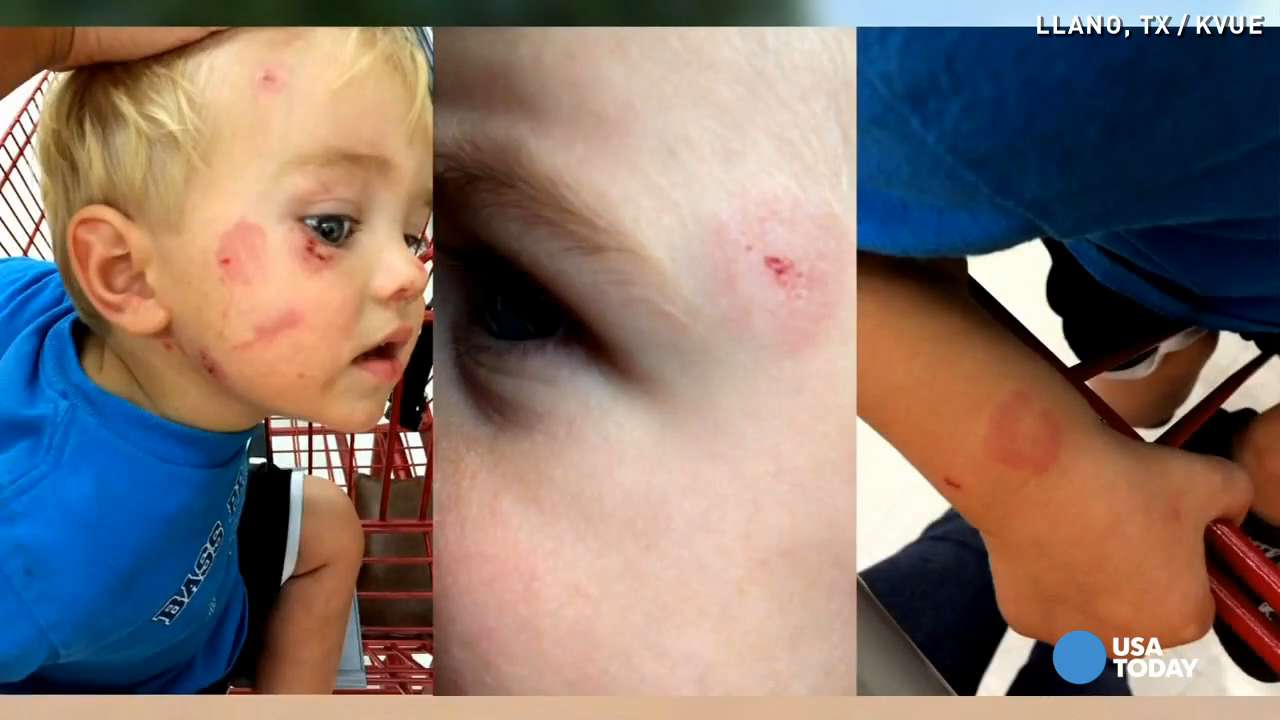Parents upset after son bitten several times at daycare