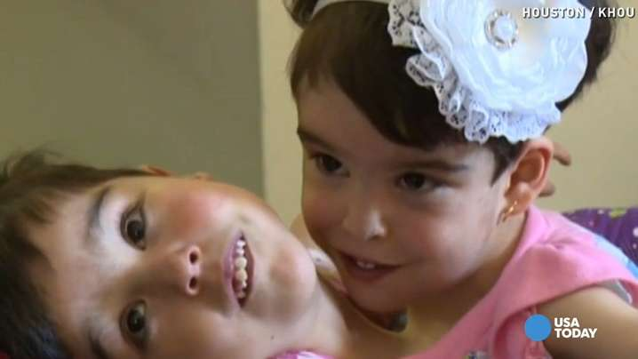 Clock is ticking for conjoined sisters with shared heart