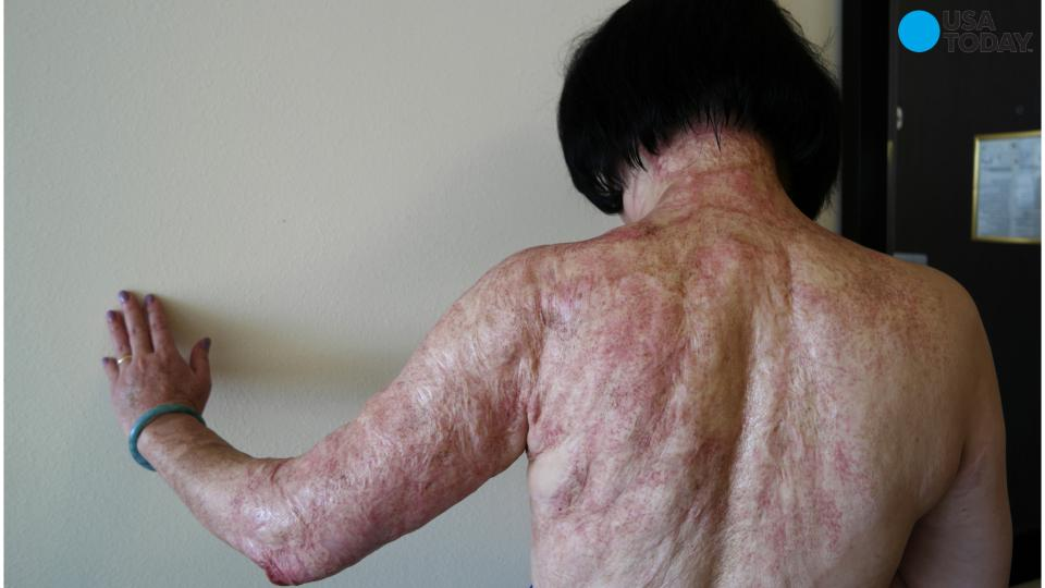 Iconic 'Napalm Girl' receives laser treatment to heal