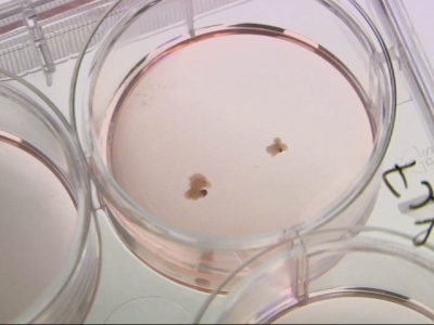 Researchers grow brain parts to study disease
