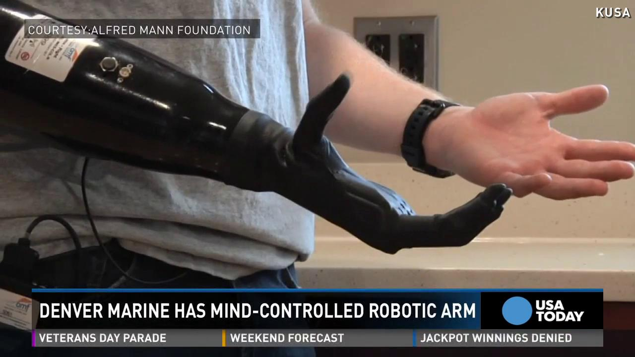 Marine gets mind-controlled robotic arm