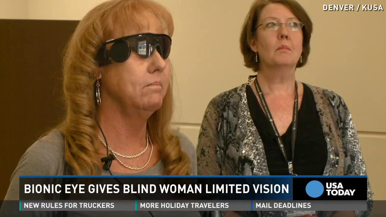 Bionic eye helps blind woman see after two decades