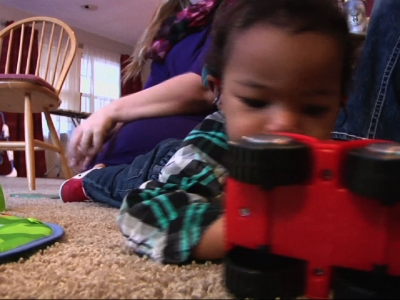 Wisc Mother Shares Experience with Microcephaly