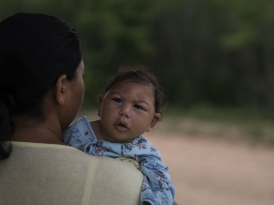 CDC: Zika definitely causes severe birth defects