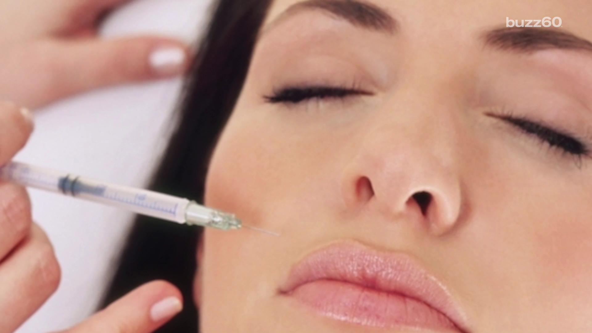 Botox could help ease your migraine