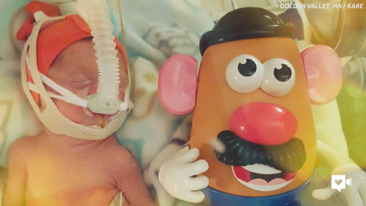 A popular childhood toy is helping parents track the growth of their extremely premature babies. See how one family started the Potato Head Project and how it's spreading to parents across the country.