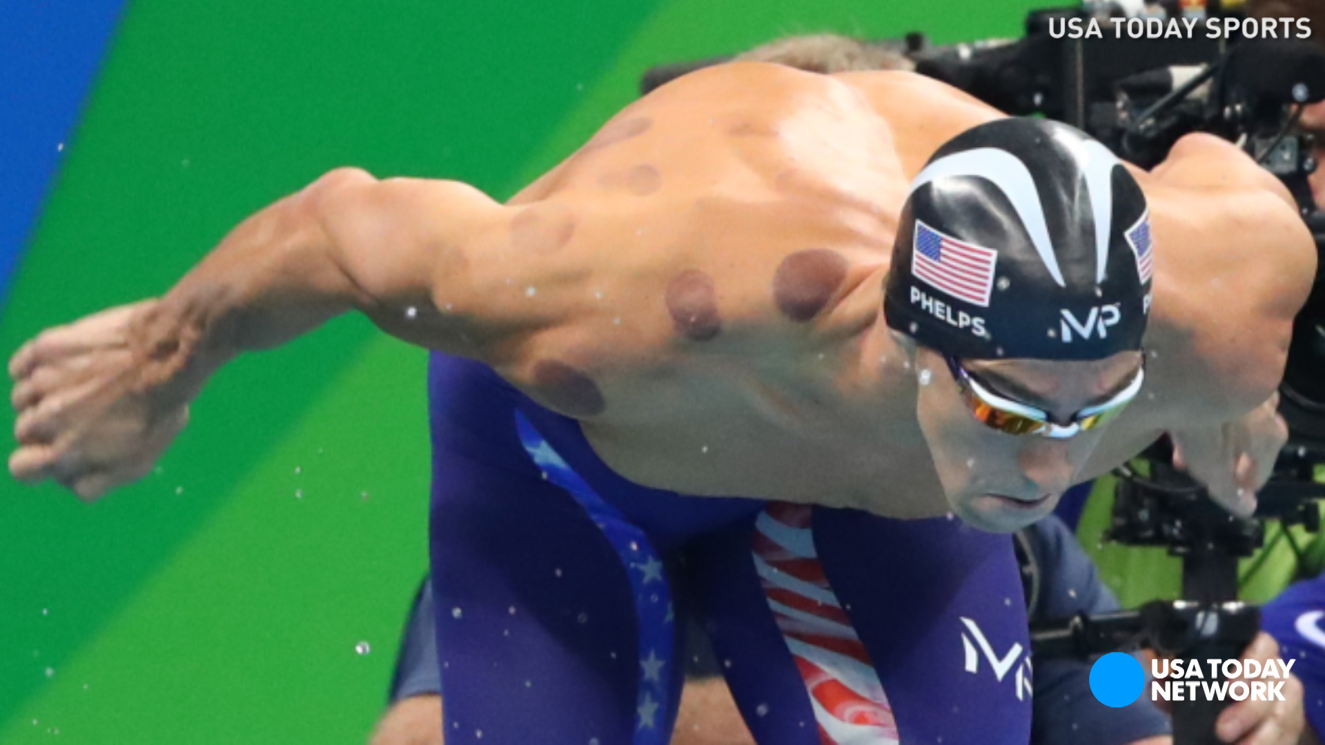 Image result for michael phelps cupping image