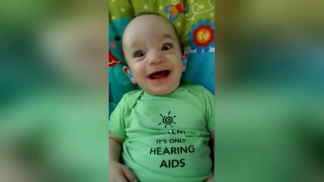 Baby uses hearing aids for the first time