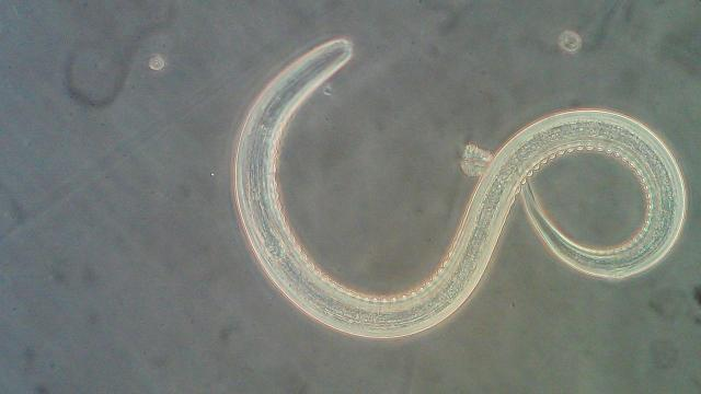 People who give themselves hookworm may be onto something