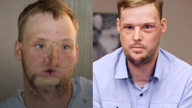 Ten years ago, Andy Sandness tried to commit suicide by shooting himself in the face. After miraculously surviving the horrific incident, the 31-year-old has received one the rarest surgeries in the world — a face transplant