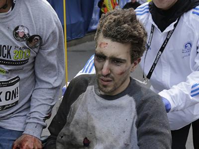 Analysis: Boston bombing victim testifies