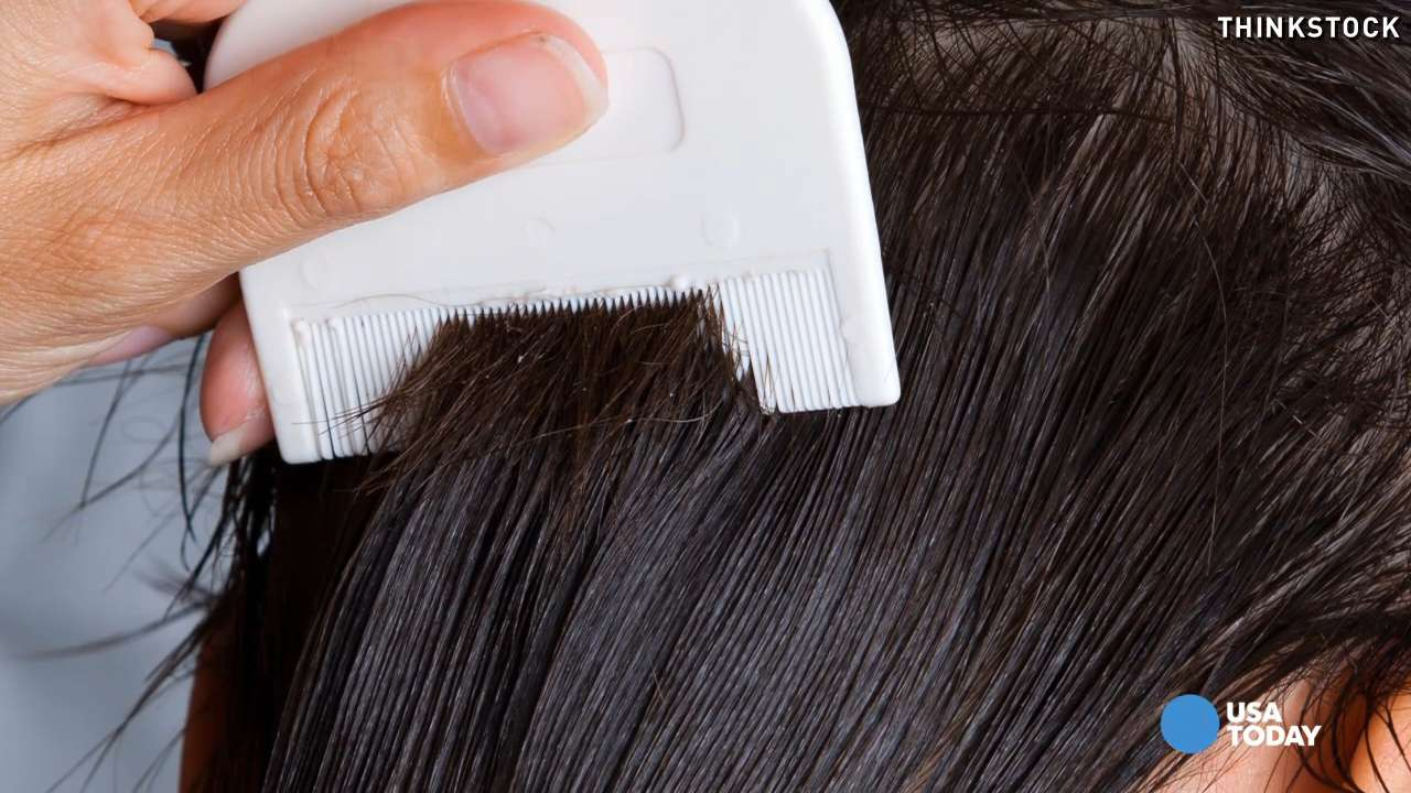 Super Lice What You Need To Know