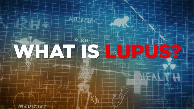 Essential facts about Lupus, a little-known autoimmune disease.